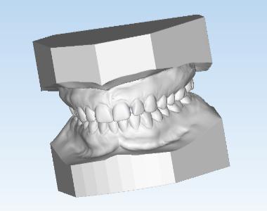 Digital Study Models - Orthodontic Products